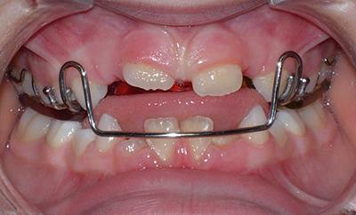 OrtodonziaBambini2