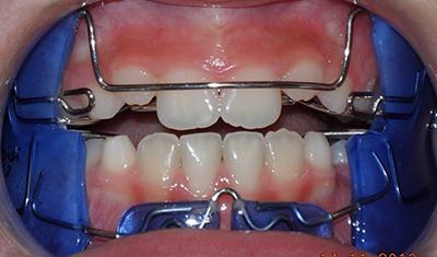 OrtodonziaBambini1