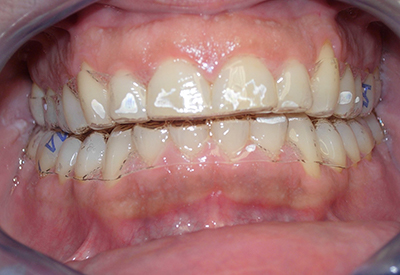 OrtodonziaAdulti2
